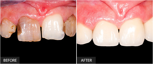 Frontal teeth restoration with ceramic crowns
