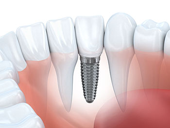 crowns_onlays_dental_implants