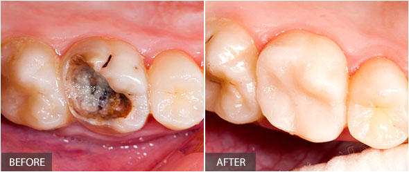 Decayed tooth after restorative treatment