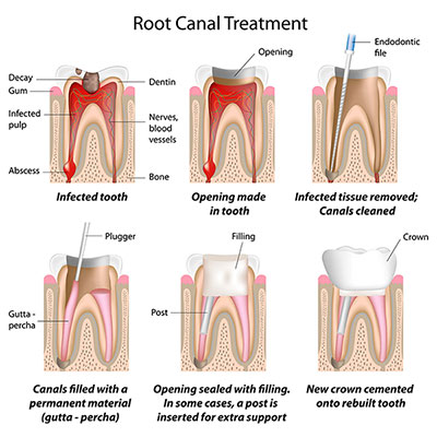 root_canal_therapy_restorations